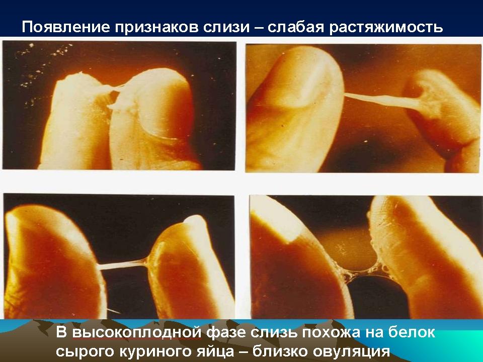 Виды внутри влагалища фото 660-365